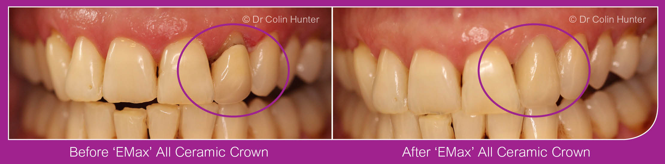 All Ceramic Crowns Dalry, Kilbirnie, Beith